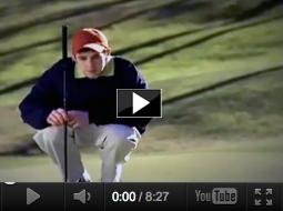 Tyler - bone transplant video